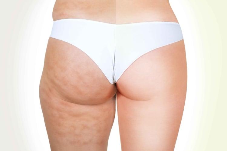 Cellulite bekämpfen | Premium